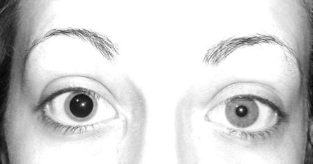 Enfermedades de los ojos : Anisocoria
