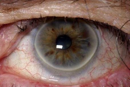 Enfermedades de los ojos : ARCO SENIL (GERONTOXON