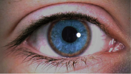 Enfermedades de los ojos : ANILLO DE KAYSER-FLEISCHER