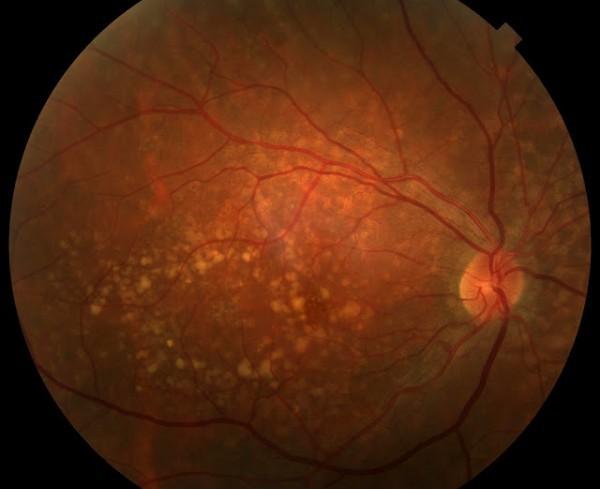 Enfermedades de los ojos.