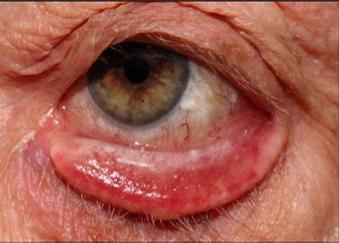 El pulido láser del ojo